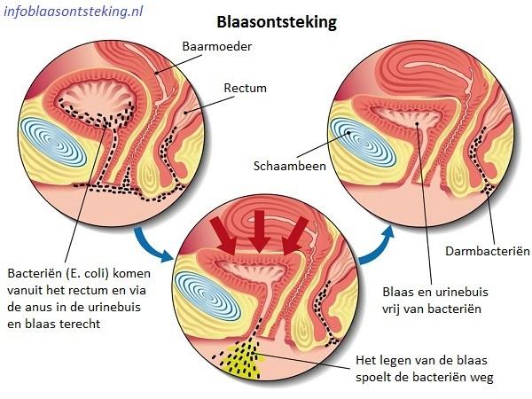 Oorzaak blaasontsteking door E. coli bacteriën die in de blaas terecht komen via de anus